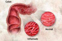 ¿Qué es el intestino grueso inflamado?